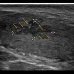 Przerost ektopowej tkanki nadnerczy w jądrach (TART) - Portal wymiany wiedzy o ultrasonografii - Eduson