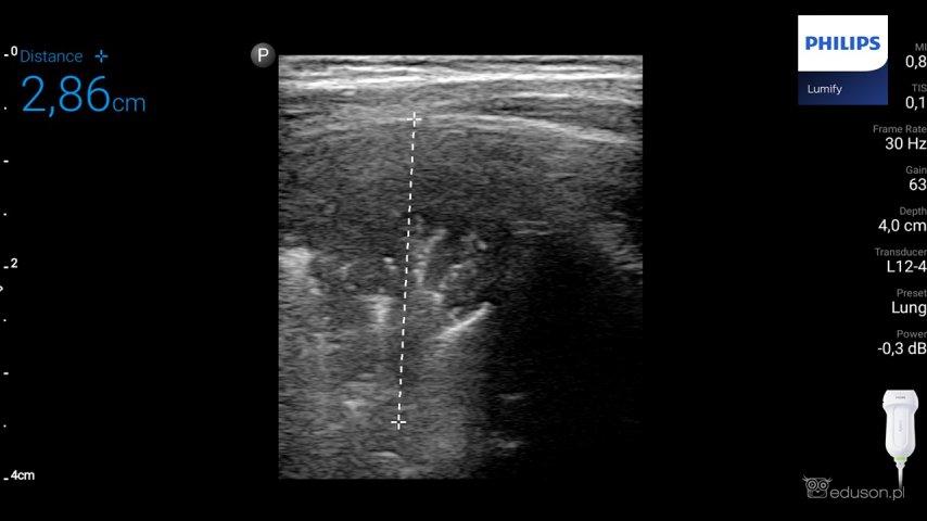 Kaszel, gorączka i ultrasonografia. Czy zapalenie płuc widać w usg? - Portal wymiany wiedzy o ultrasonografii - Eduson