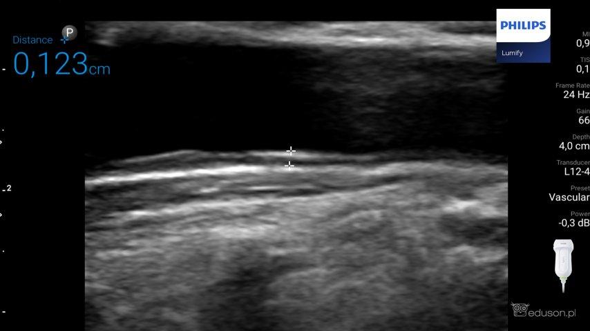 Zdjęcie 5. Głowica liniowa PHILIPS LUMIFY. Preset vascular. Pomiar kompleksu błony środkowej Iwewnętrznej tętnicy szyjnej u67-letniej kobiety obciążonej hiperlipidemią, nadciśnieniem tętniczym icukrzycą typu II.
