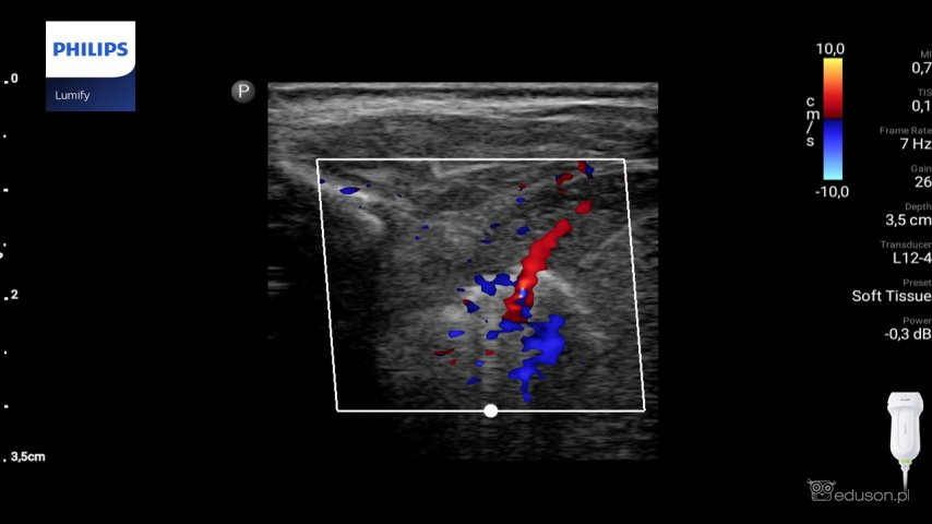 Naczynie tętnicze wychodzące zaorty piersiowej idoprowadzające krew dosekwestracji płucnej wewnątrzpłatowej unoworodka. Głowica liniowa. Philips Lumify.