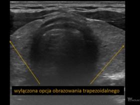 tarczyca - Portal wymiany wiedzy o ultrasonografii - Eduson
