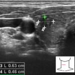 Biopsja aspiracyjna cienkoigłowa (BAC) zmian ogniskowych w tarczycy - Portal wymiany wiedzy o ultrasonografii - Eduson