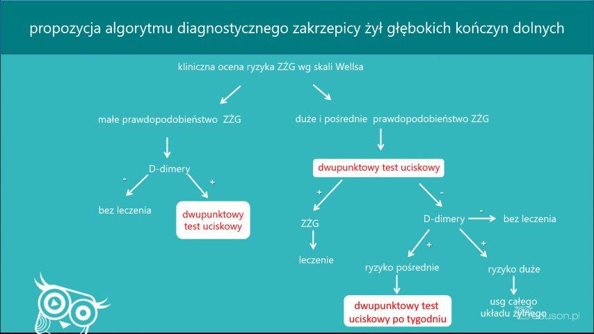 Propozyjca schematu diagnostycznego wykorzystującego skalę Wellsa, DTU, oznaczenie D-dimerów. Schemat niestanowi wytycznych. Infografika propozycja algorytmu diagnostycznego zakrzepicy żył głębokich kończyn dolnych