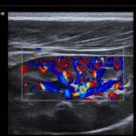 ACUSON Juniper - Portal wymiany wiedzy o ultrasonografii - Eduson