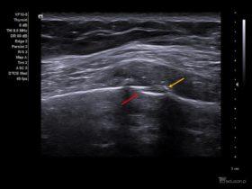 Kobieta z bólem klatki piersiowej po urazie komunikacyjnym. - Portal wymiany wiedzy o ultrasonografii - Eduson