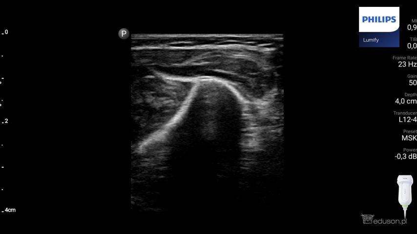 Kość promieniowa wprzekroju poprzecznym. Głowica liniowa. Philips Lumify. Obraz ultrasonograficzny.