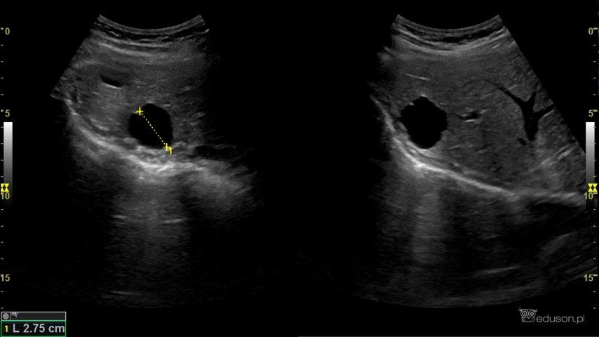 Zdjęcie 2. ADPKD u31-letniego mężczyzny. Torbiel wątroby. Stwierdzane są uokoło 60% pacjentów zADPKD.