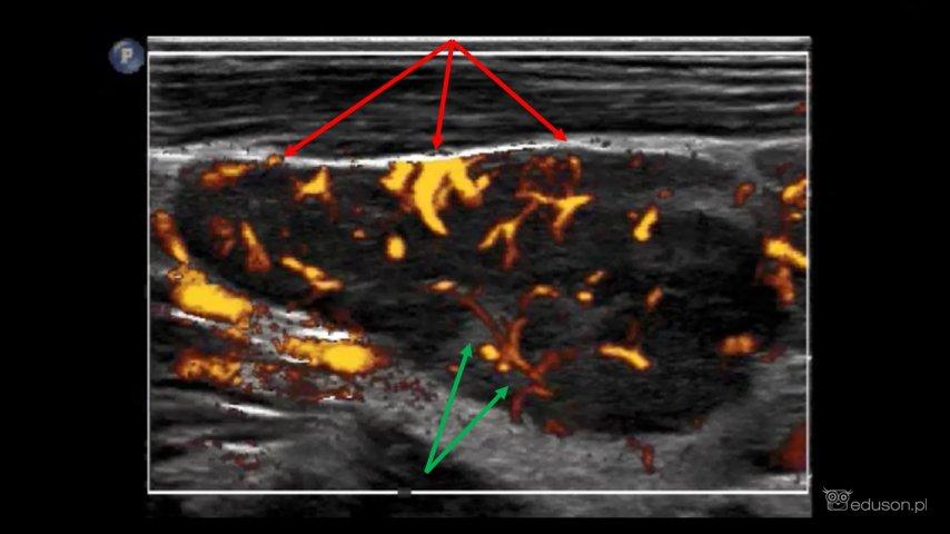 Mieszany typ unaczynienia. Zielonymi strzałkami oznaczono naczynia odwnękowe, czerwonymi strzałkami oznaczono patologiczne naczynia wnikające odobwodu. Obraz ultrasonograficzny