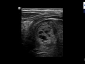 Krwawienie do nadnerczy u noworodków - Portal wymiany wiedzy o ultrasonografii - Eduson