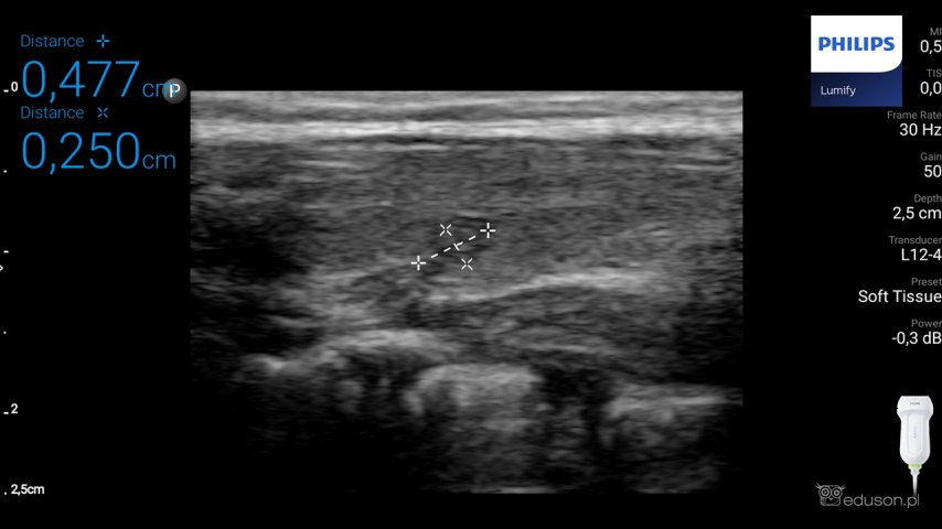 Hipoechogeniczna zmiana ogniskowa widoczna wczęści środkowej prawego płata tarczycy u4-letniego dziecka (odszczepiona tkanka grasicy). Głowica liniowa. Philips Lumify.