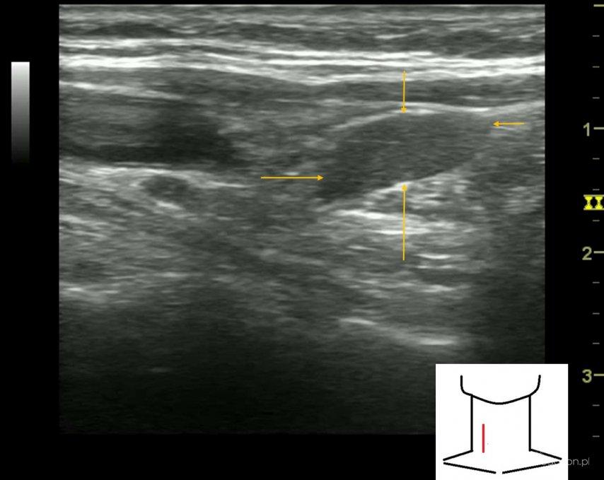 ...znajduje się na szyi i powoduje zmiany w obrazie usg nerek. - Portal wymiany wiedzy o ultrasonografii - Eduson