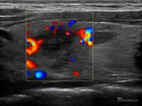 64-letnia kobieta z bólem szyi - Portal wymiany wiedzy o ultrasonografii - Eduson