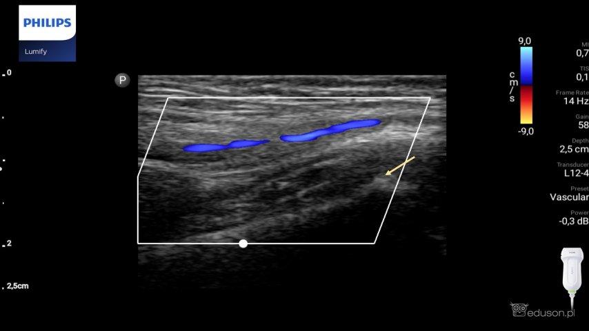 Prawa tętnica jądrowa wopcji kolorowego dopplera wdoczna nawysokości pierścienia pachwinowego powierzchownego iguzka łonowego (strzałka). Głowica liniowa. Philips Lumify.