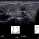 Czy zaleciłabyś / zaleciłbyś biopsję takiej zmiany ogniskowej tarczycy? - Portal wymiany wiedzy o ultrasonografii - Eduson