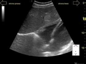 Łagodne zmiany ogniskowe wątroby - Portal wymiany wiedzy o ultrasonografii - Eduson