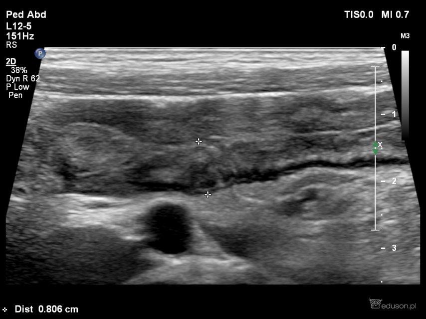 Wyrostek mi wycięli, a brzuch nadal boli... - Portal wymiany wiedzy o ultrasonografii - Eduson